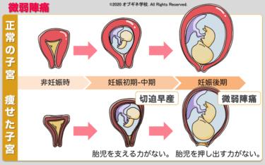異常分娩編1 概論 新しい切り口の産婦人科学