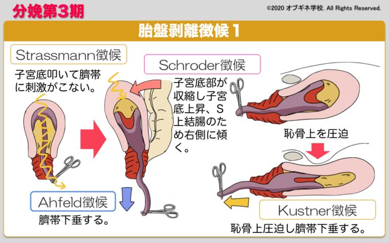 胎盤 剥離 徴候 常位胎盤早期剥離とは―分娩前に胎盤が剥がれてしまう重症疾患