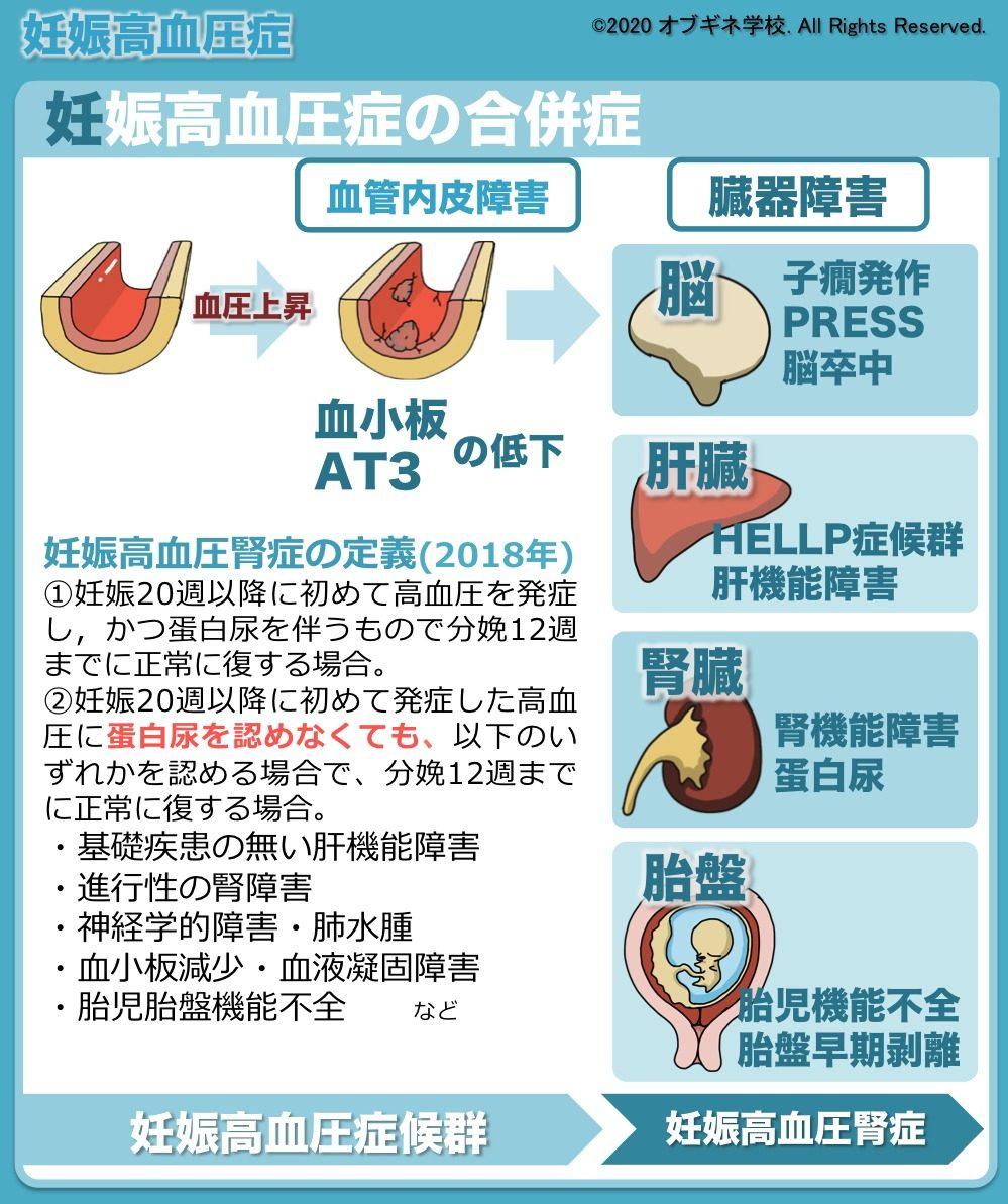 妊娠 高血圧 症候群